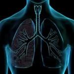 Vaticano participa de campanha de combate à tuberculose
