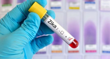 Zika: OMS diz que antes de 2020 não será licenciada vacina segura